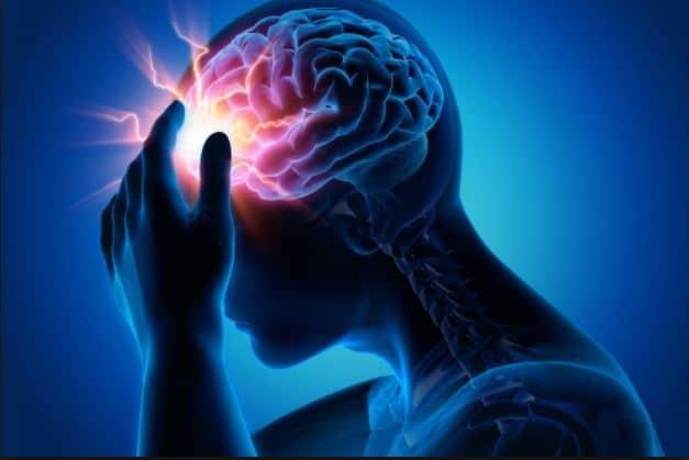 epilessia roma